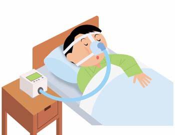 睡眠時無呼吸症候群 CPAP